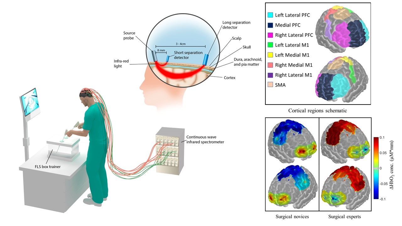 Non-invasive brain imaging diagram