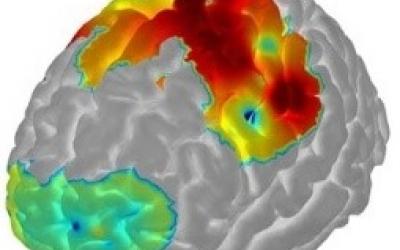 Brain Imaging Diagram