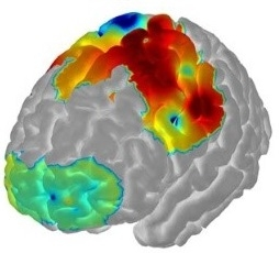 Brain Imaging Diagram